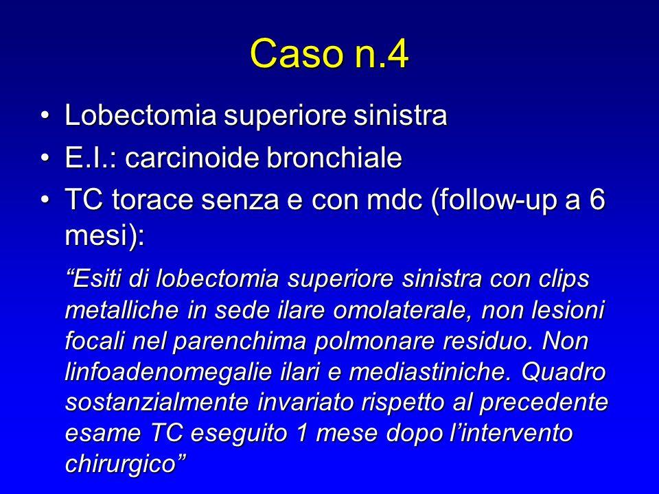 Caso n.4 Lobectomia superiore sinistra E.I.: carcinoide bronchiale