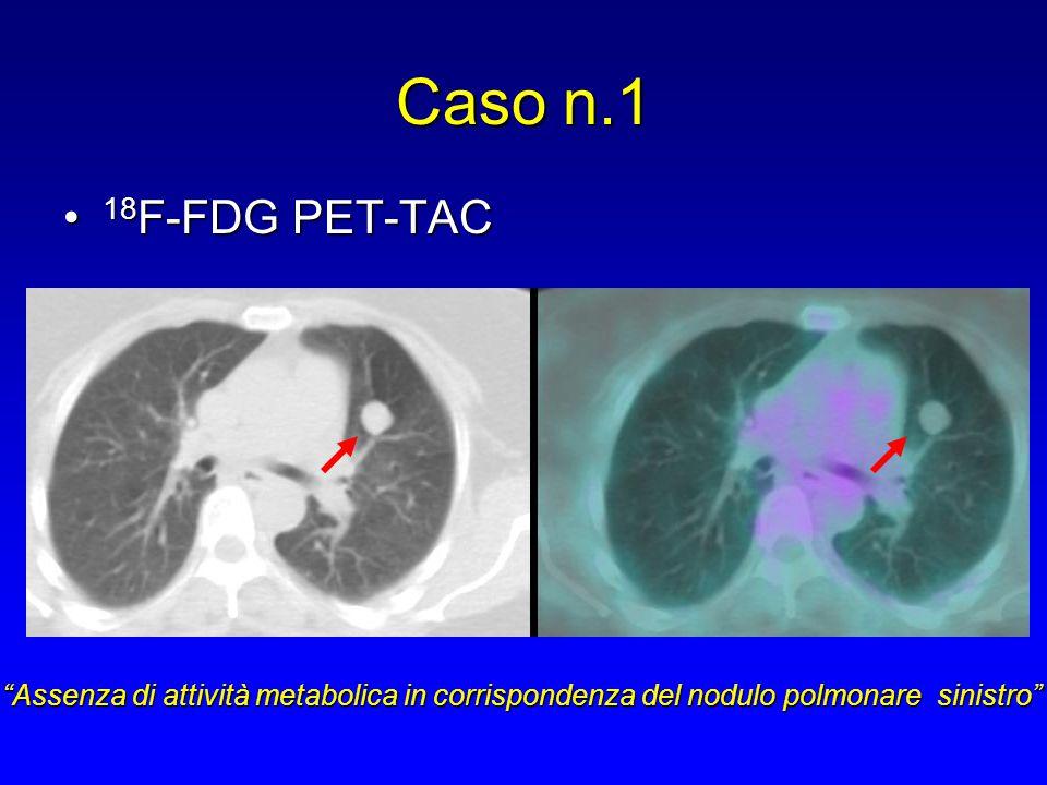 Caso n.1 18F-FDG PET-TAC.
