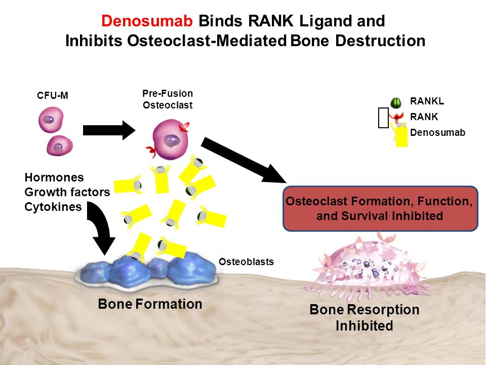 Denosumab Binds RANK Ligand and Inhibits Osteoclast-Mediated Bone Destruction