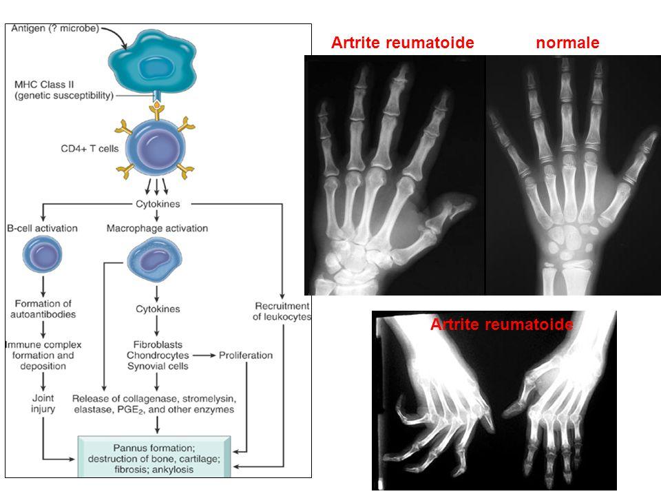 normale Artrite reumatoide