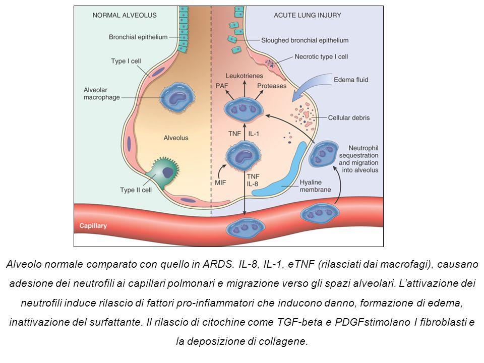 Alveolo normale comparato con quello in ARDS