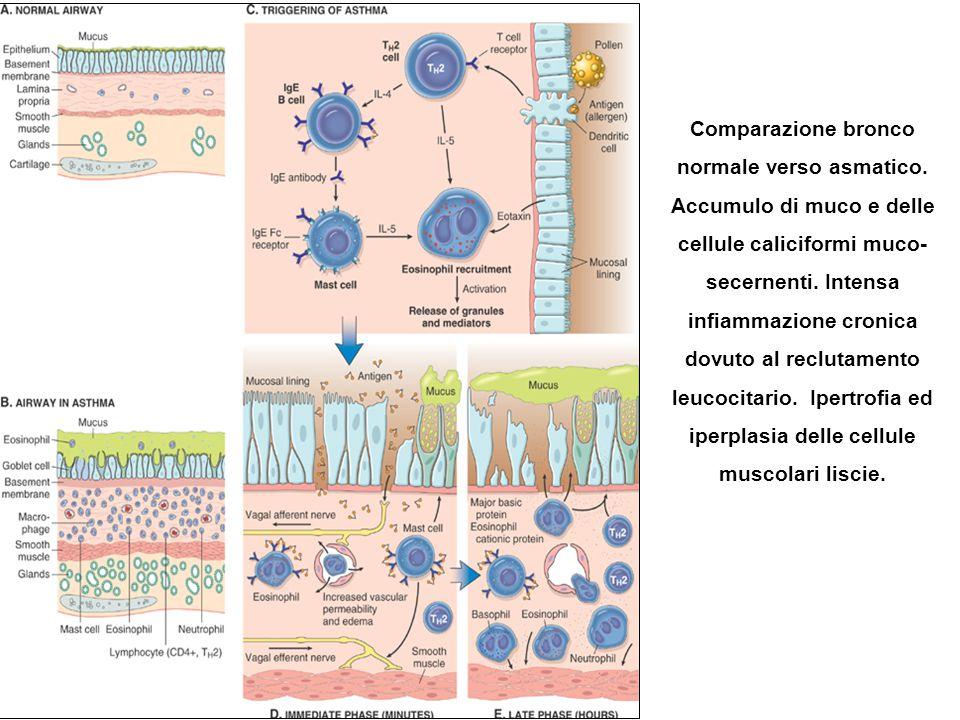 Comparazione bronco normale verso asmatico