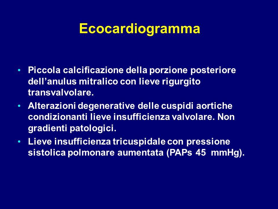 Ecocardiogramma Piccola calcificazione della porzione posteriore dell'anulus mitralico con lieve rigurgito transvalvolare.