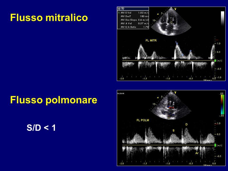 Flusso mitralico Flusso polmonare S/D < 1