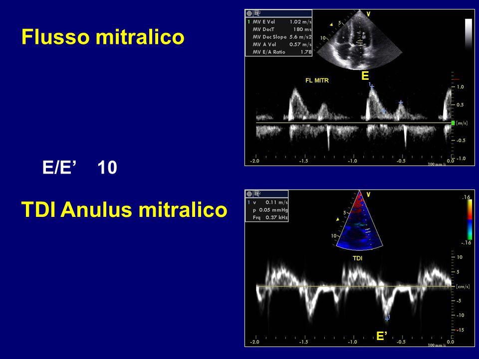 Flusso mitralico E E/E' 10 TDI Anulus mitralico E'