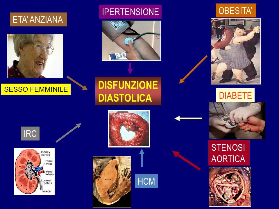 DISFUNZIONE DIASTOLICA OBESITA' IPERTENSIONE ETA' ANZIANA DIABETE IRC