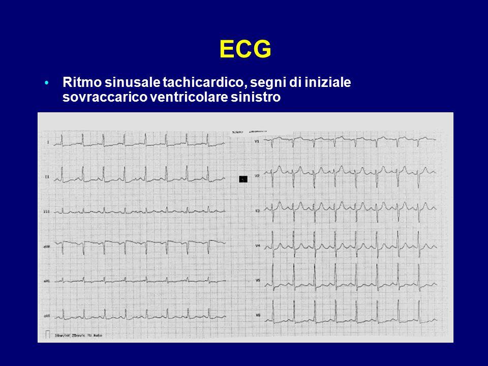 ECG Ritmo sinusale tachicardico, segni di iniziale sovraccarico ventricolare sinistro