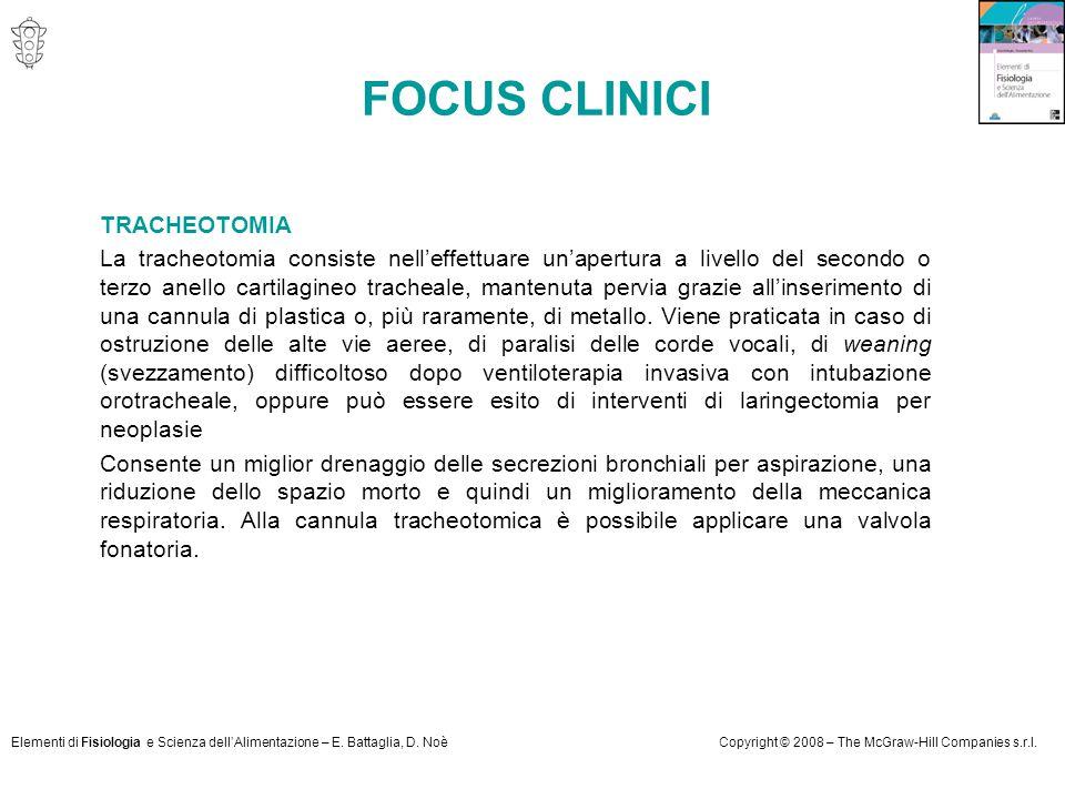FOCUS CLINICI TRACHEOTOMIA