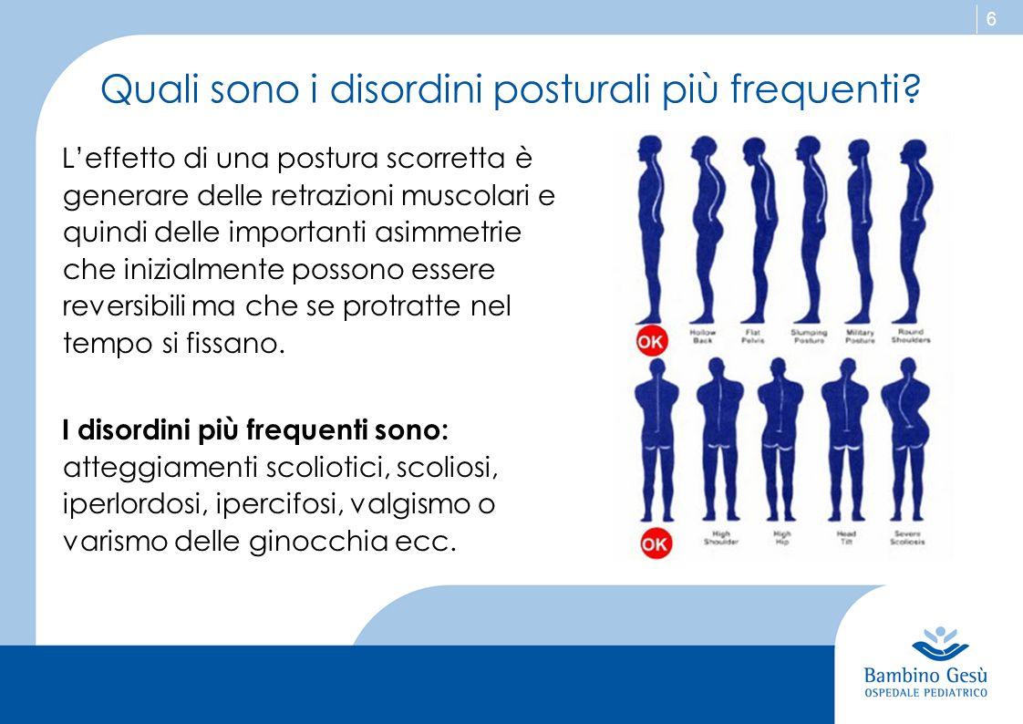Quali sono i disordini posturali più frequenti