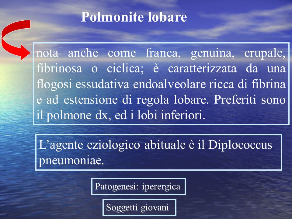 Polmonite lobare