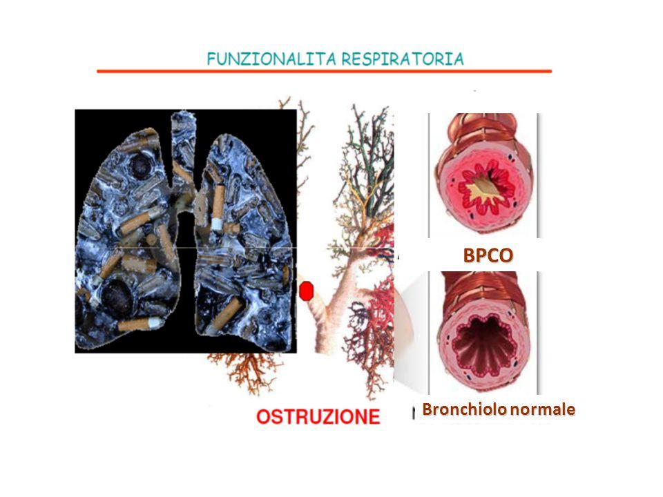 BPCO Bronchiolo normale