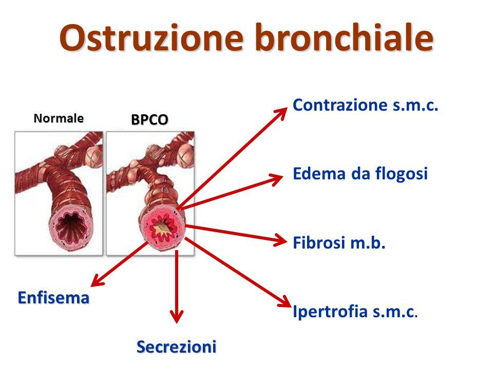 Ostruzione bronchiale