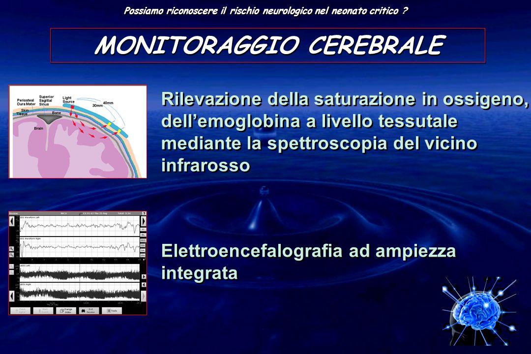 MONITORAGGIO CEREBRALE