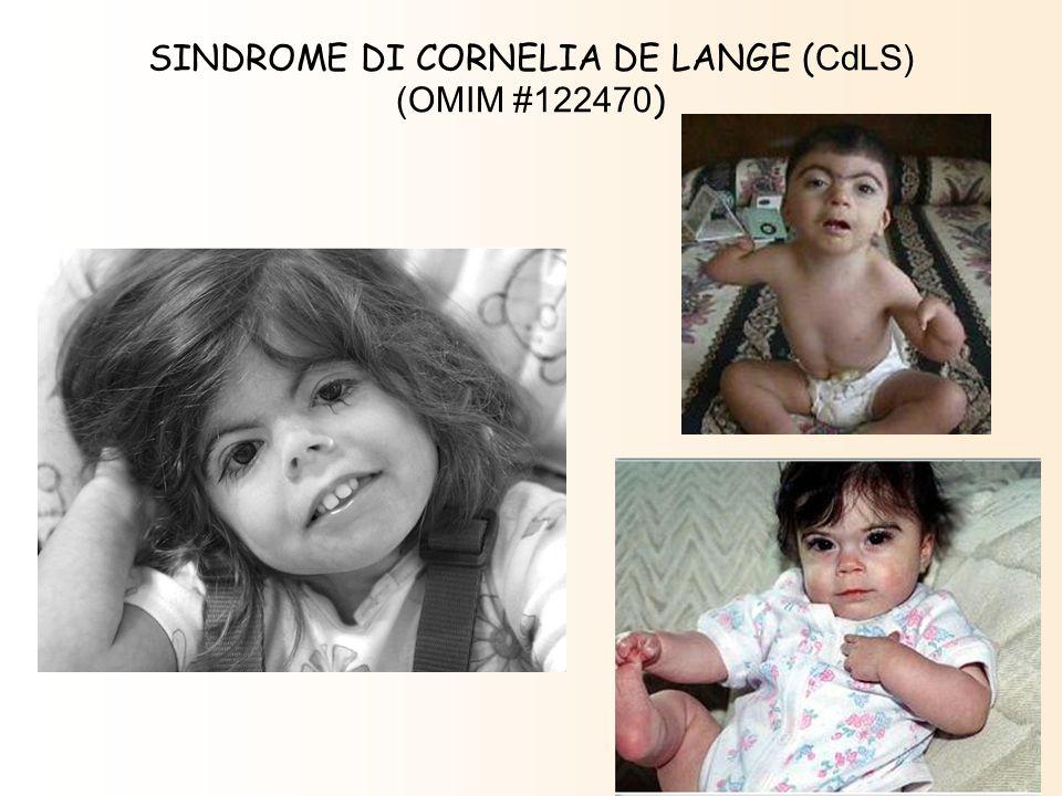 SINDROME DI CORNELIA DE LANGE (CdLS)