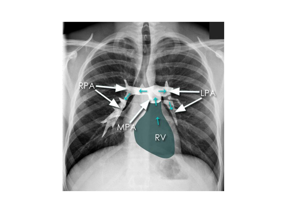 RPA: RIGHT PULMONARY ARTERY