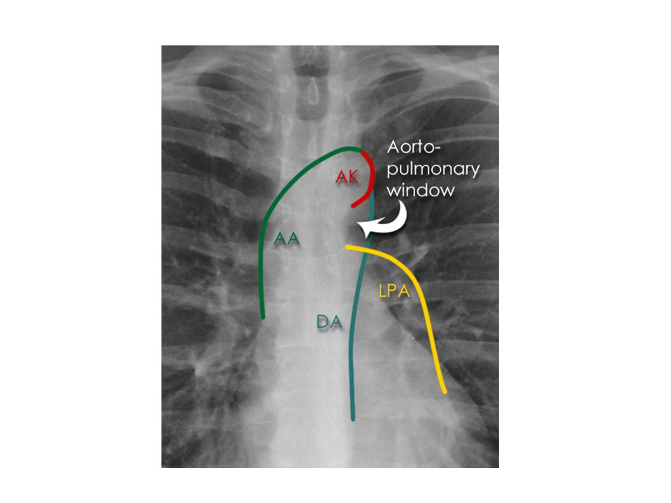 AA: ASCENDING AORTA AK: AORTIC KNUCKLE LPA: LEFT PULMONARY ARTERY DA DESCENDING AORTA