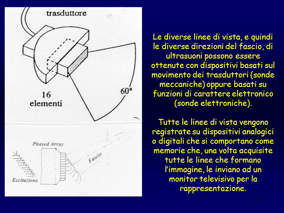 Le diverse linee di vista, e quindi le diverse direzioni del fascio, di ultrasuoni possono essere ottenute con dispositivi basati sul movimento dei trasduttori (sonde meccaniche) oppure basati su funzioni di carattere elettronico (sonde elettroniche).