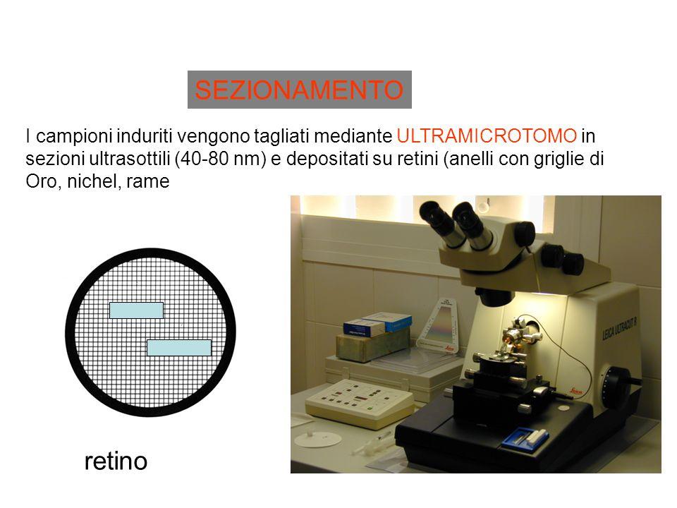 SEZIONAMENTO I campioni induriti vengono tagliati mediante ULTRAMICROTOMO in.