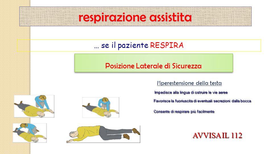respirazione assistita