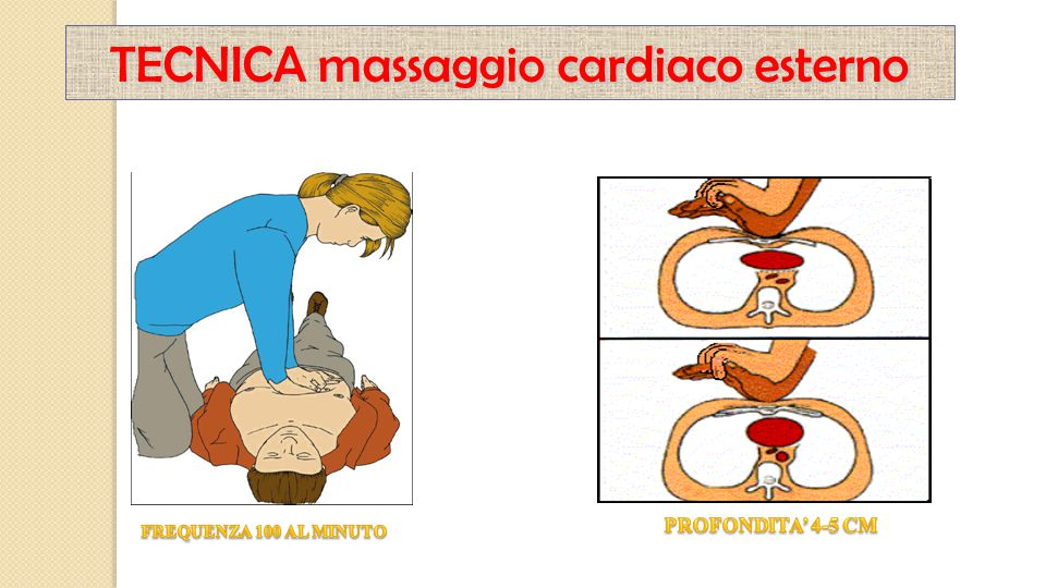 TECNICA massaggio cardiaco esterno