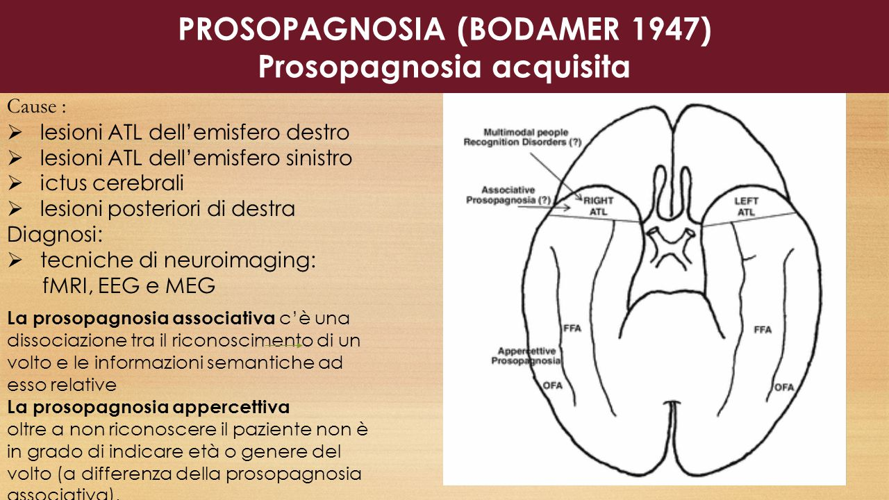 PROSOPAGNOSIA (BODAMER 1947) Prosopagnosia acquisita