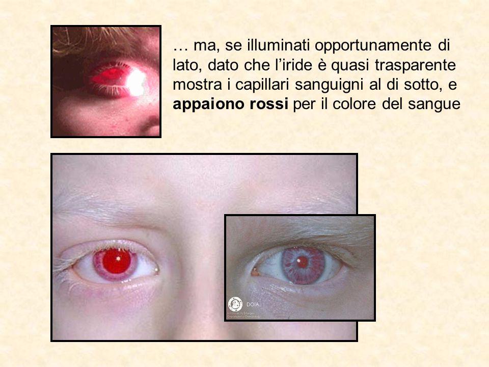 … ma, se illuminati opportunamente di lato, dato che l'iride è quasi trasparente mostra i capillari sanguigni al di sotto, e appaiono rossi per il colore del sangue