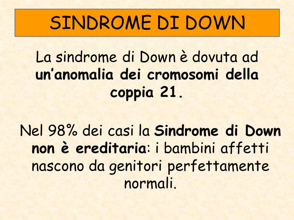 SINDROME DI DOWN La sindrome di Down è dovuta ad un'anomalia dei cromosomi della coppia 21.