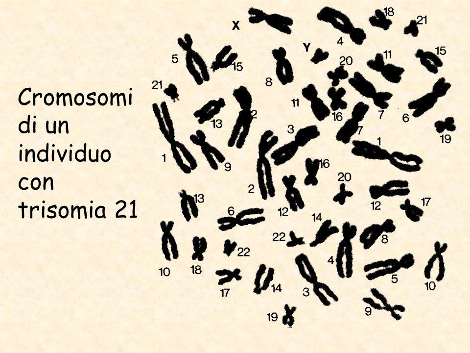 Cromosomi di un individuo con trisomia 21