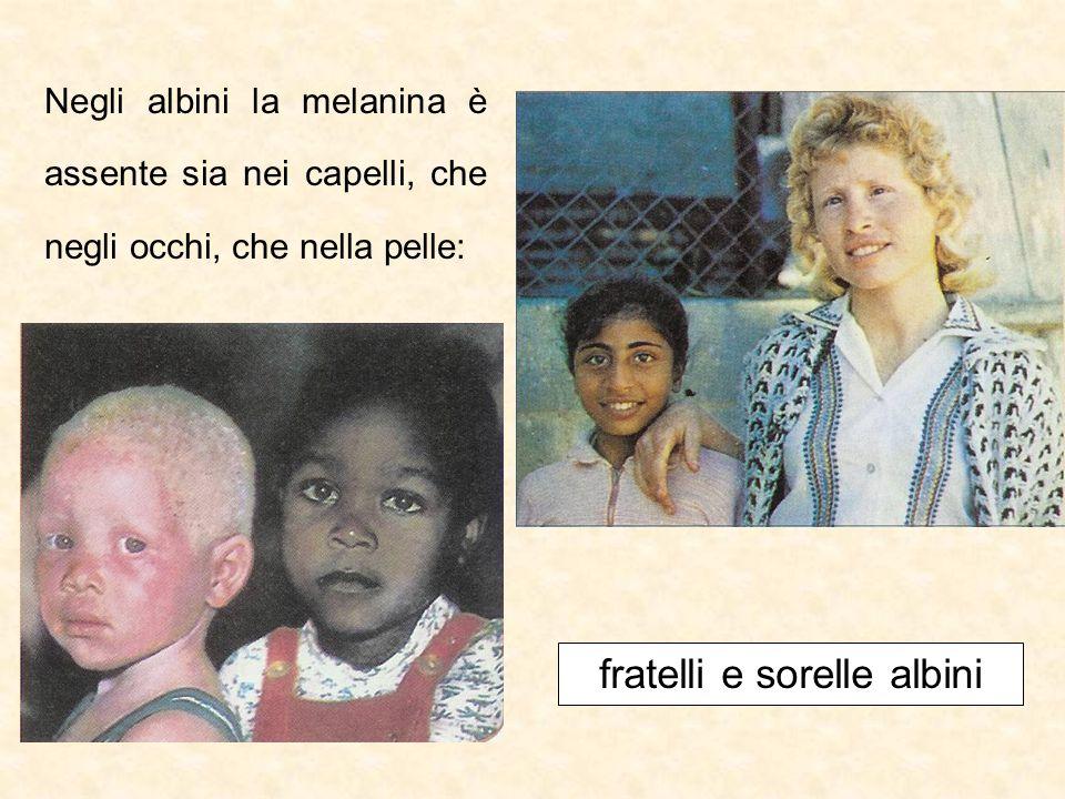 fratelli e sorelle albini
