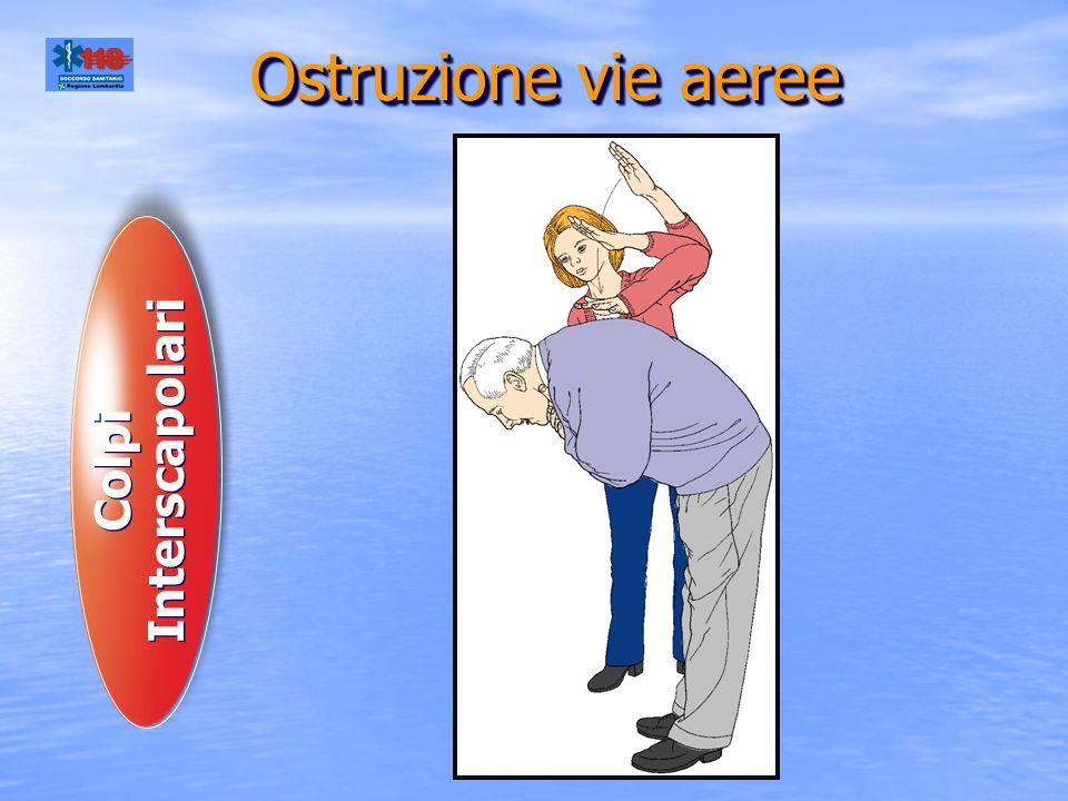 Ostruzione vie aeree Colpi Interscapolari