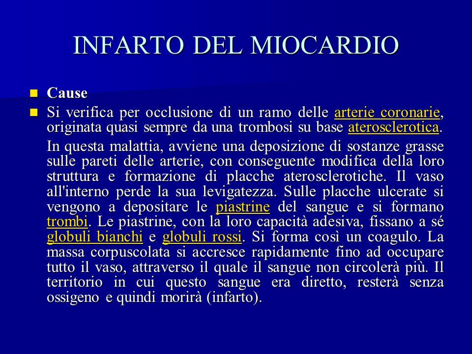 INFARTO DEL MIOCARDIO Cause