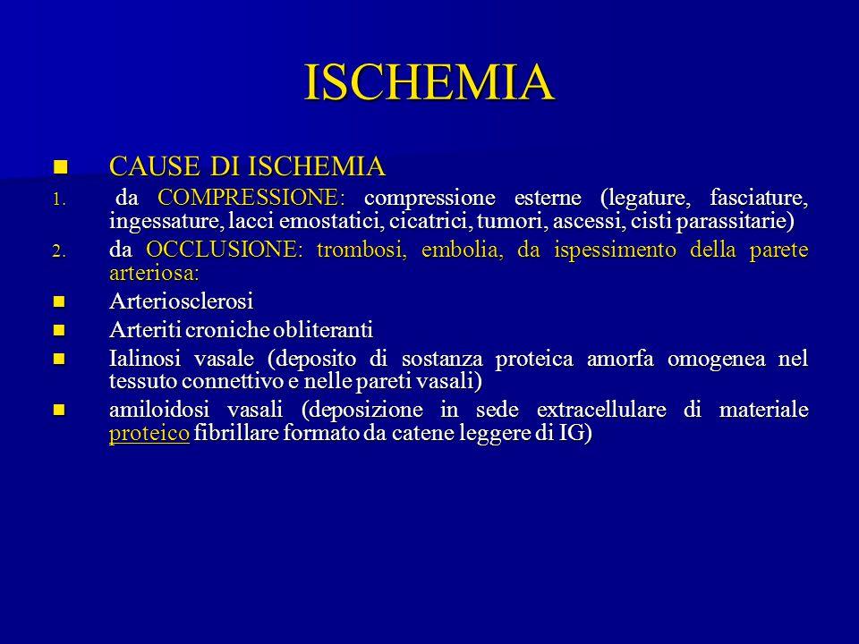 ISCHEMIA CAUSE DI ISCHEMIA