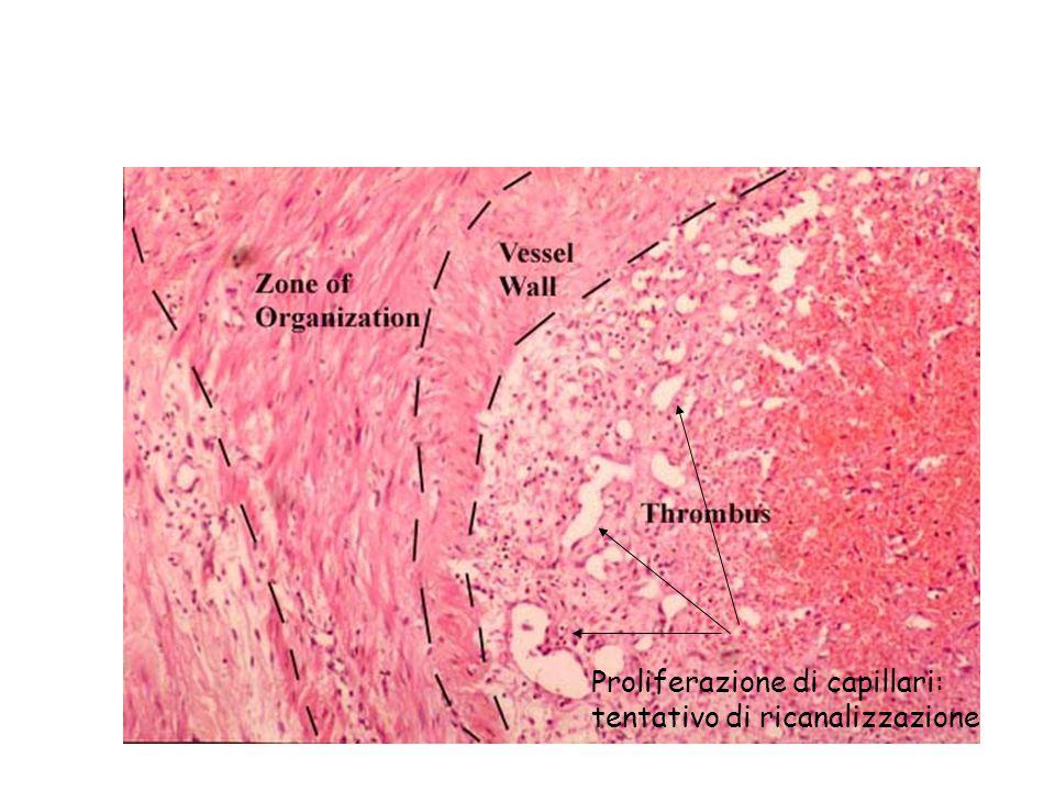 Proliferazione di capillari: