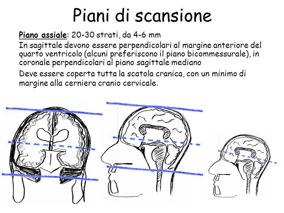Encefalo protocollo d esame rm ppt video online scaricare for Piani di coperta 16x20