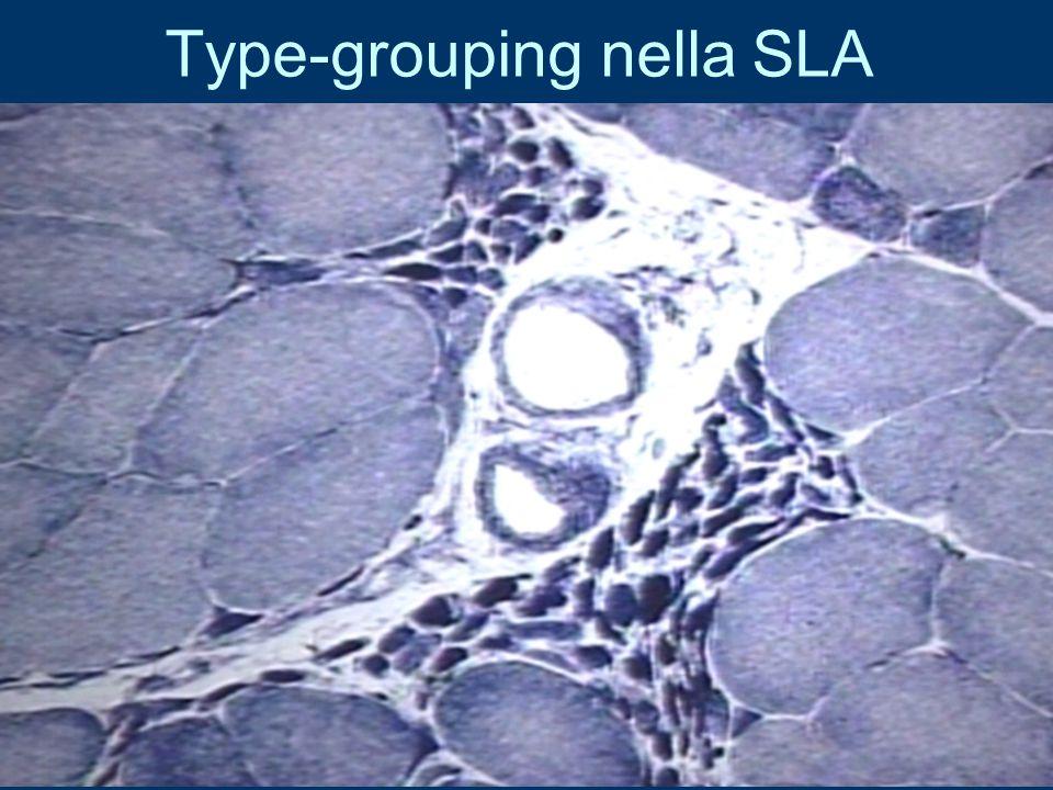 Type-grouping nella SLA