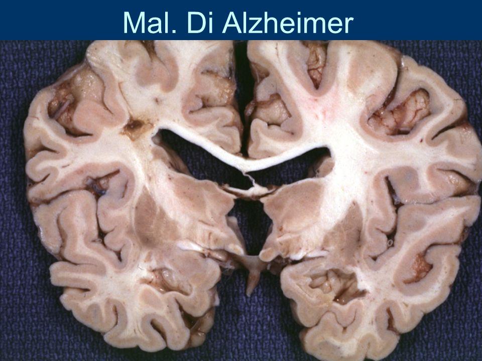 Mal. Di Alzheimer