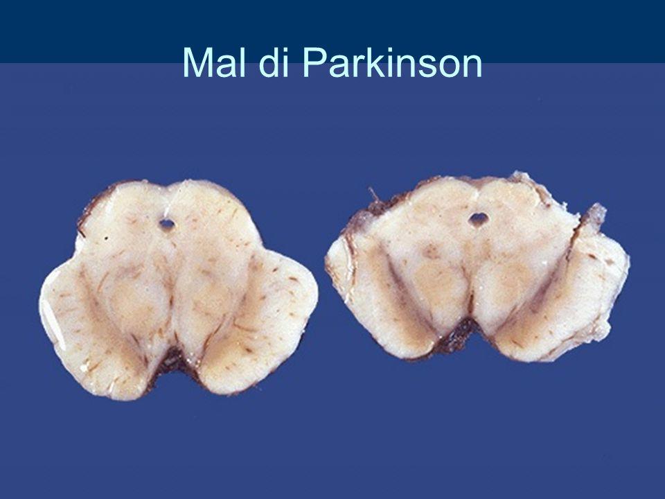 Mal di Parkinson