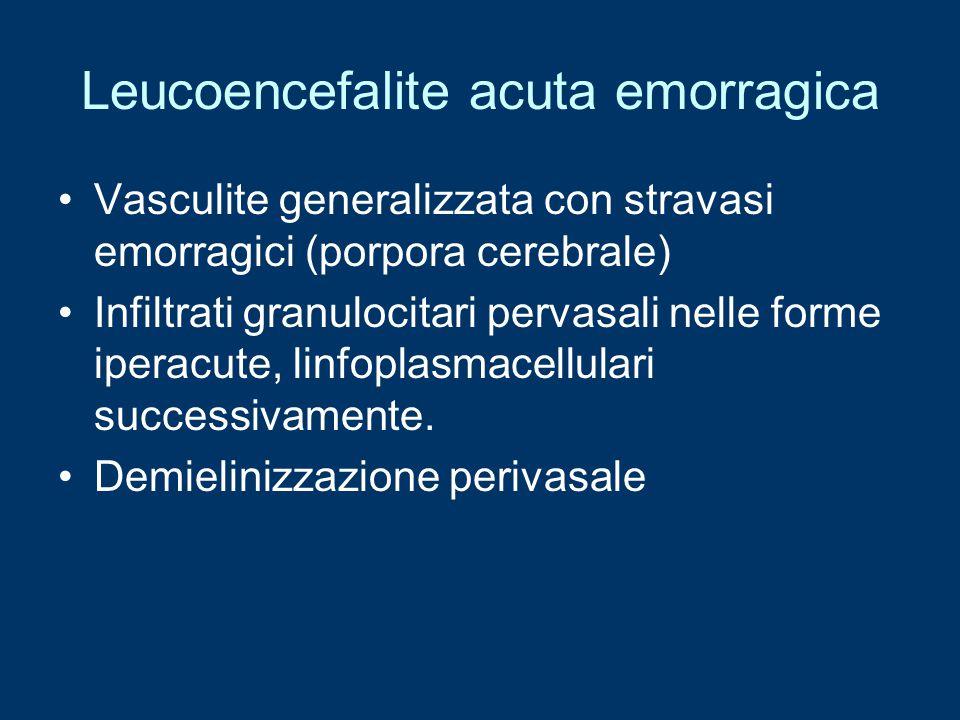 Leucoencefalite acuta emorragica