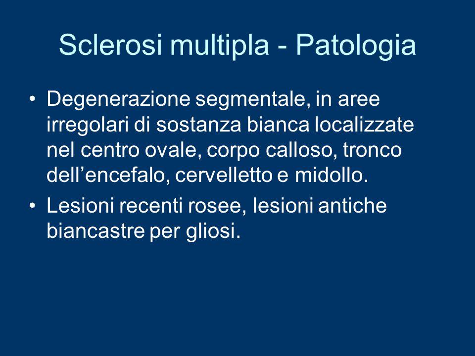 Sclerosi multipla - Patologia