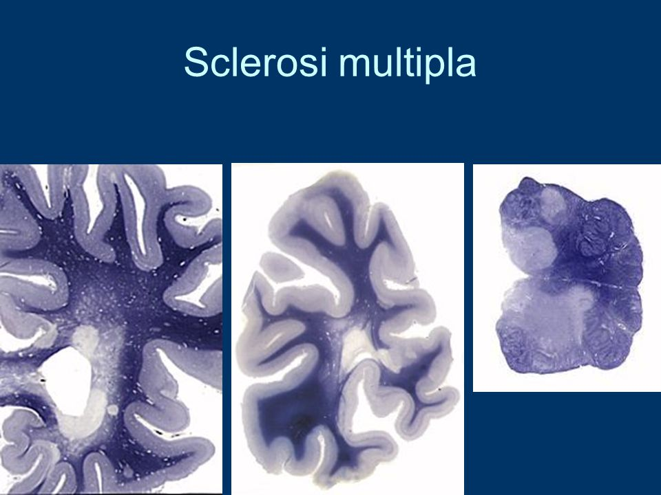 Sclerosi multipla