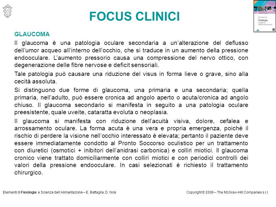 FOCUS CLINICI GLAUCOMA