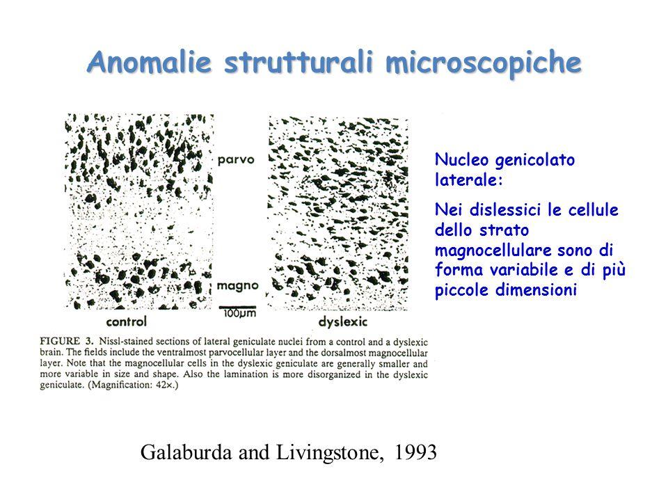 Anomalie strutturali microscopiche