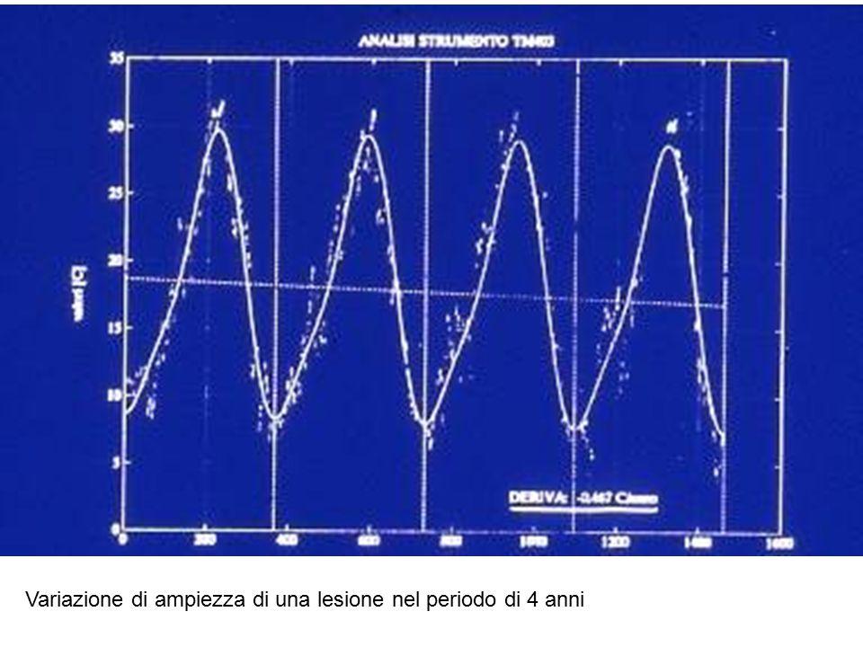 Variazione di ampiezza di una lesione nel periodo di 4 anni