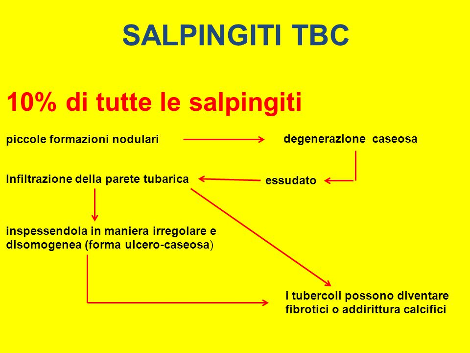 SALPINGITI TBC 10% di tutte le salpingiti piccole formazioni nodulari