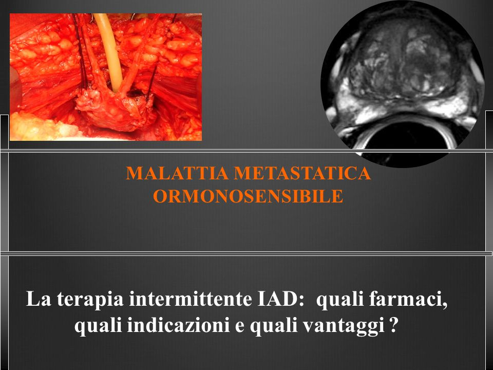 La terapia intermittente IAD: quali farmaci,