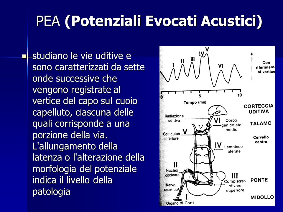 PEA (Potenziali Evocati Acustici)
