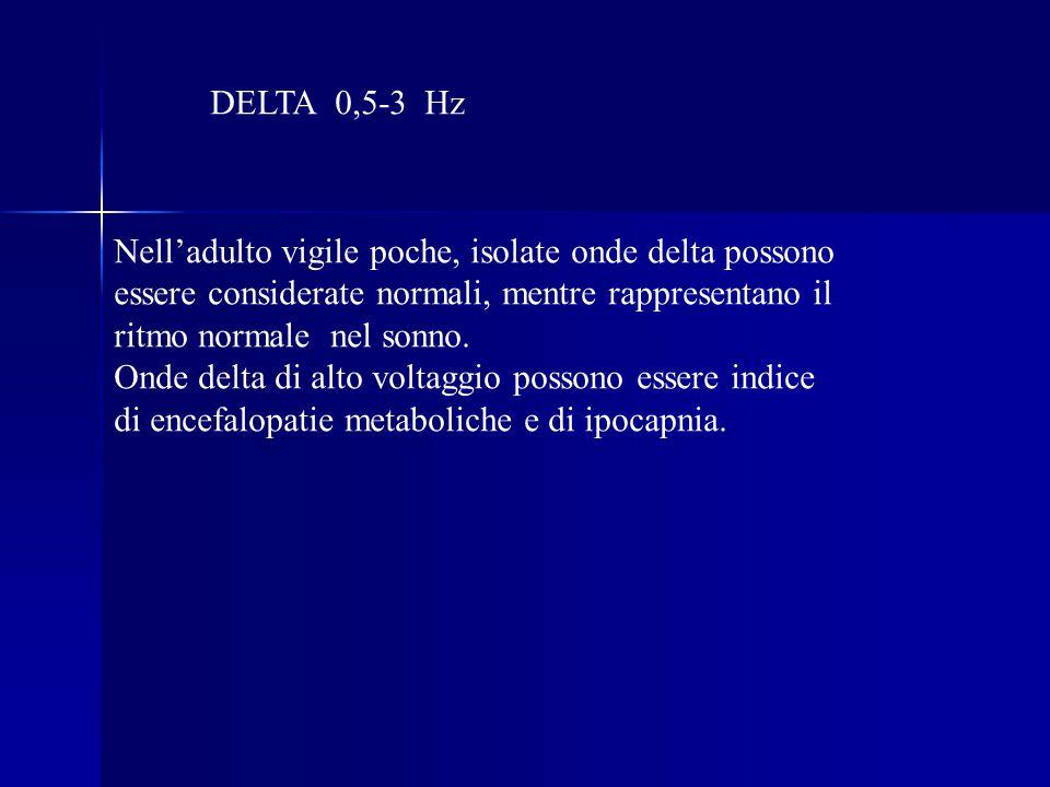 DELTA 0,5-3 Hz Nell'adulto vigile poche, isolate onde delta possono. essere considerate normali, mentre rappresentano il.