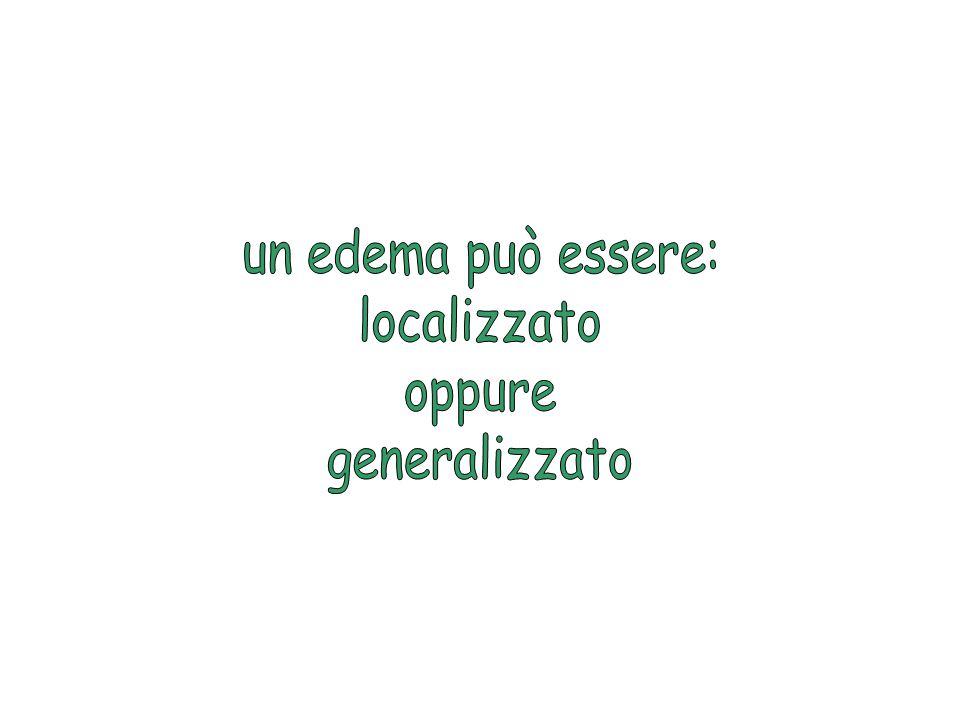 un edema può essere: localizzato oppure generalizzato