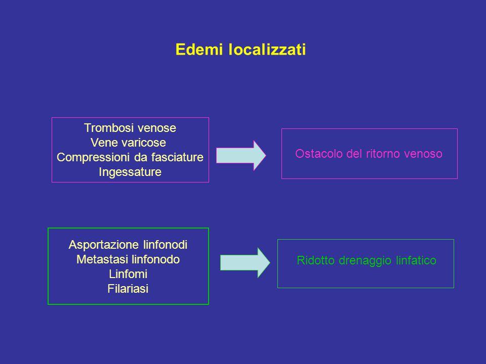 Edemi localizzati Trombosi venose Vene varicose