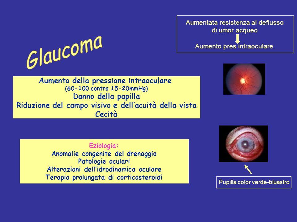 Glaucoma Aumento della pressione intraoculare Danno della papilla